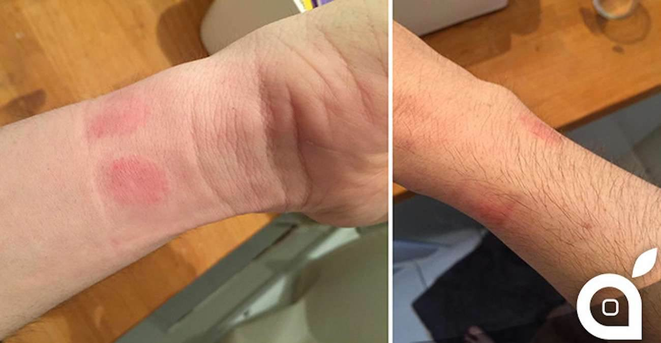 Apple-Watch-Skin-Irritation